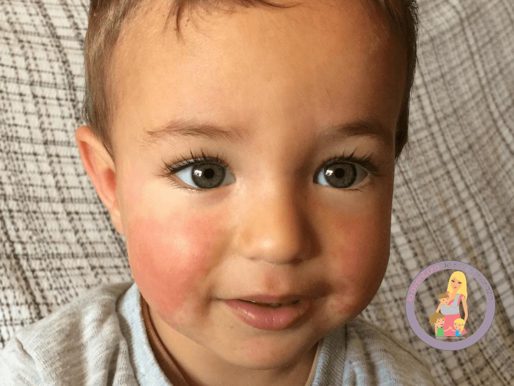 quinta enfermedad bebe